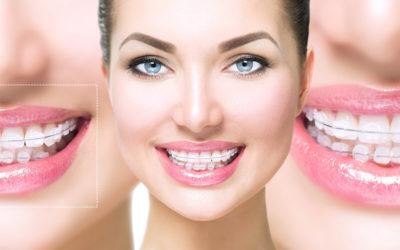 Ortodontia em Adultos